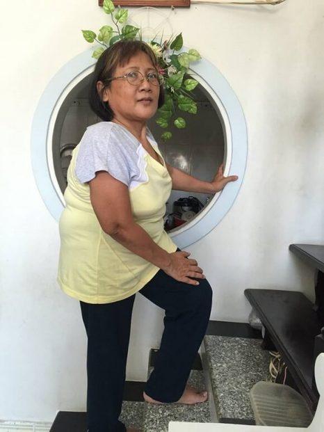 bệnh nhân cong vẹo cột sống tại Maple Healthcare