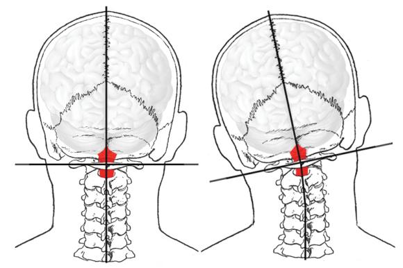 Điều trị đau đầu Maple 2
