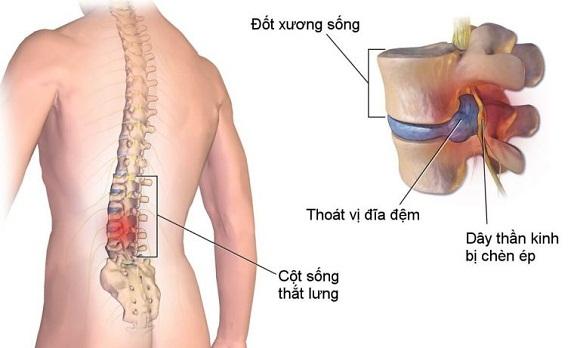 hình mô phỏng thoát vị đĩa đệm thắt lưng