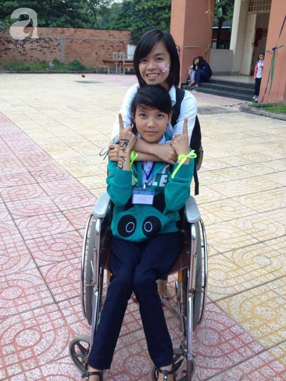 Kim Vân trước khi chữa trị tại Maple Healthcare