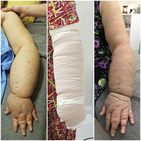 điều trị phù nề hệ bạch huyết tại maple healthcare
