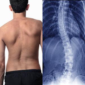 Cong vẹo cột sống lâu ngày sẽ gây chèn ép nội tạng, biến dạng ngoại hình