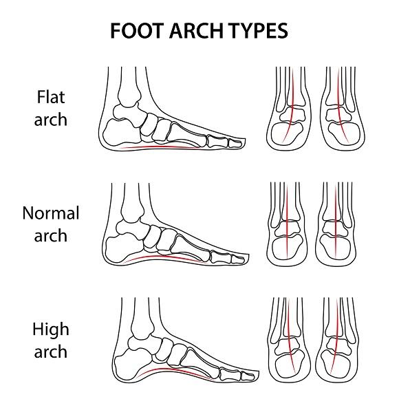 điều trị bàn chân bẹt