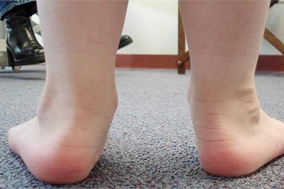 bệnh xương khớp do bàn chân bẹt