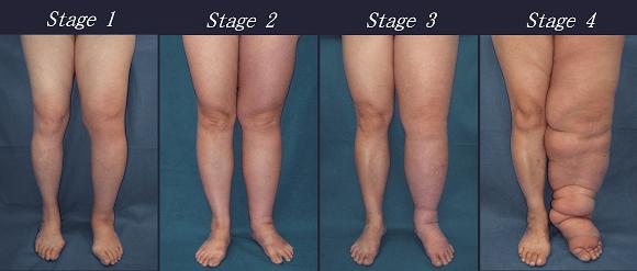 điều trị hiệu quả phù nề hạch bạch huyết ở chân