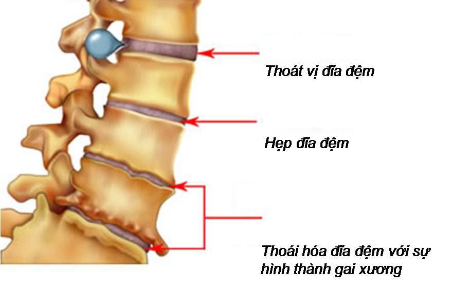 Thoái hóa đĩa đệm cột sống thắt lưng