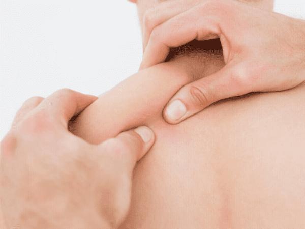 Trị liệu cơ chuyên sâu MRT Myofascial-Release Maple Healthcare