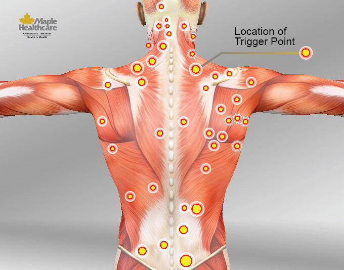 Vị trí các điểm trigger point - thông tin cần biết về trị liệu cơ MRT